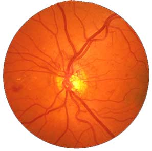 Light-sensing cells in retina