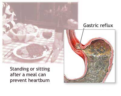 Stomach Acid Ibs Symptom