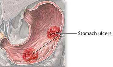 Peptic Ulcers (Stomach Ulcers)   NIDDK