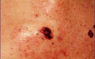 Relatives of melanoma patients from medicineworld.org