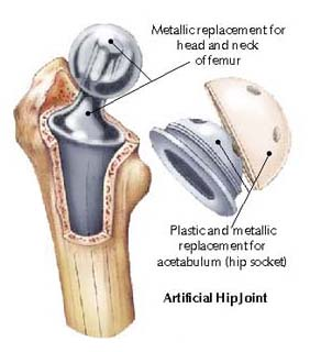 New Joint Replacement Material From Medicineworld Org